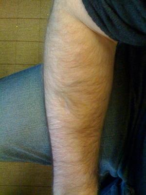 scar left after lipoma removal from arm