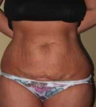 Before my tummy tuck surgery