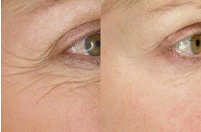 Eye wrinkles - before and after