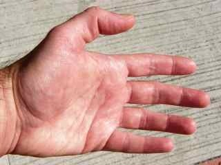 Hyperhidrosis of the hands, excessive sweating, can be treated with Botox