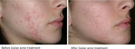 Before and after acne treatment with Isolaz