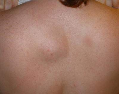 Upper back lipoma before removal