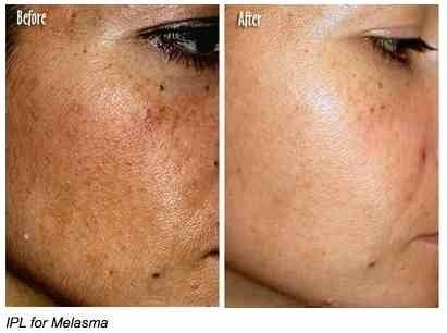 Melasma before and after. IPL treatment of the face