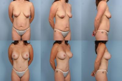 Mommy makeover before and after photos by Dr. Steve Teitelbaum