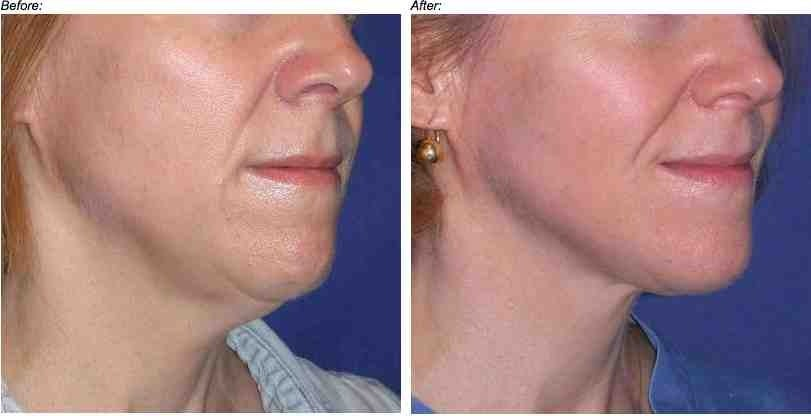 Skin tightening and firming with a combination of plastic surgery and nonsurgical techniques