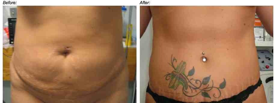 Stretch mark removal by tummy tuck surgery