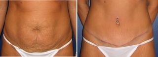 Tummy tuck scars - Abdominal scar 4 months after tummy tuck