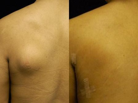 Lipoma Removal On Back