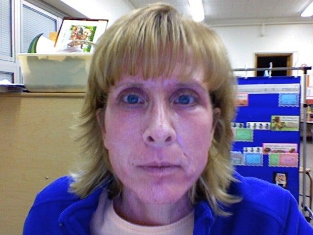 After Laser Resurfacing The Best Wrinkle Cream