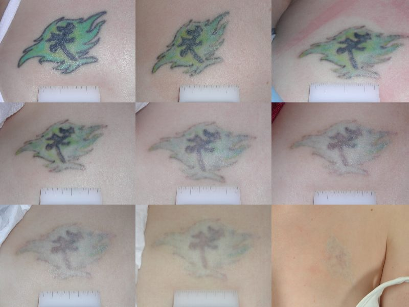Tattoo Removal With TCA