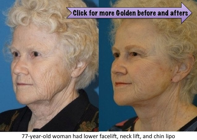 before and after elderly facelifts