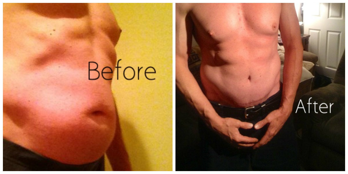 male abdomen before and after tummy tuck