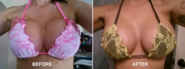 Botched star Alicia Jenkins with symmastia and after Dr. Dubrow's breast implant revision.
