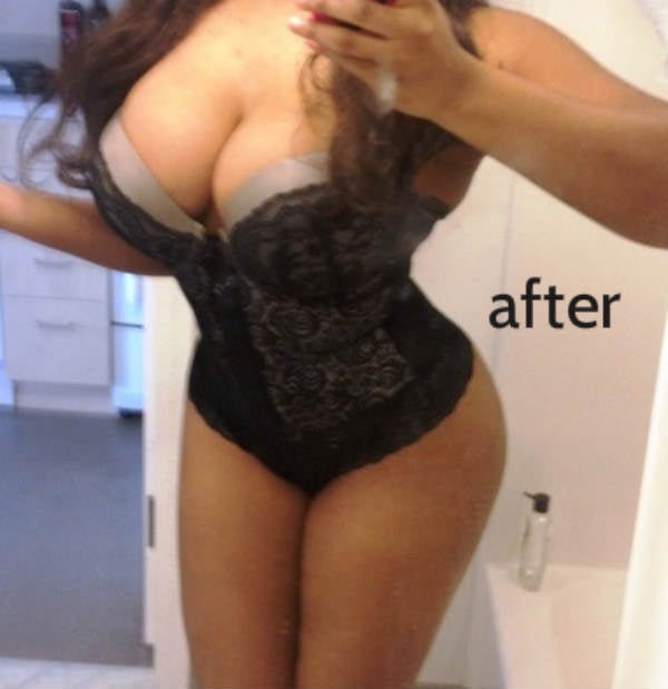 Before and After Brazillian Butt Lift BBL Photo