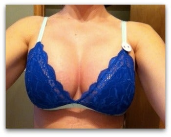 After her breast augmentation, going from B to D