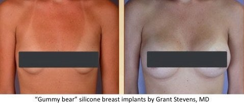 Sientra Silimed breast implants
