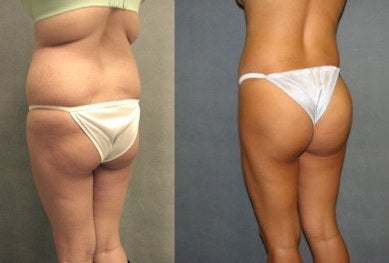 brazilian butt lift photos