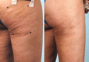 Cellulaze before and after
