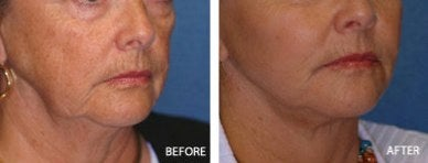 cheek implant before and after photos