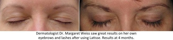 Latisse eyebrows