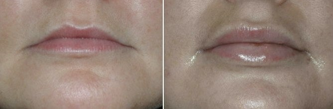 lip implant before and after