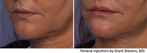 Perlane lip injections