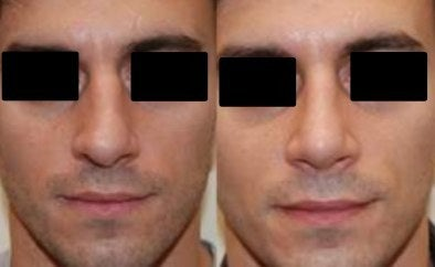 rhinoplasty before and after deviated septum