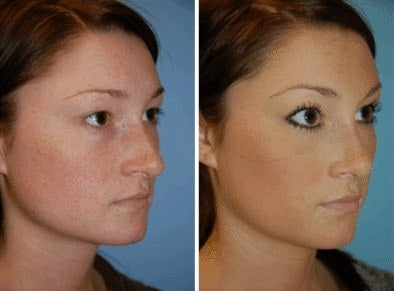 nose job photos