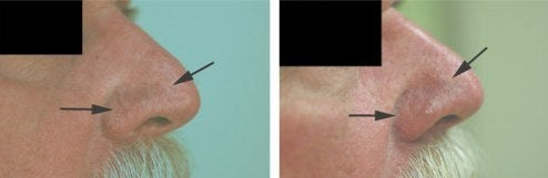 nose vein removal