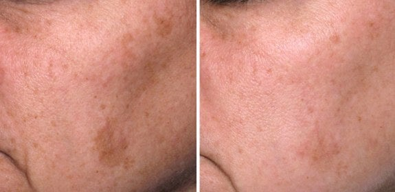 chemical peel freckles