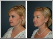 chin liposuction photo