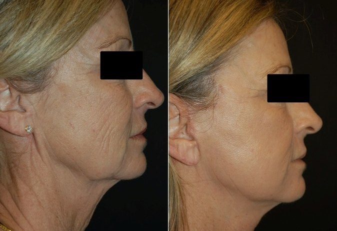 Deep FX before and after
