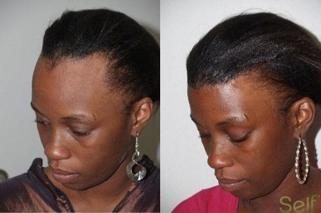 hairline restoration before and after
