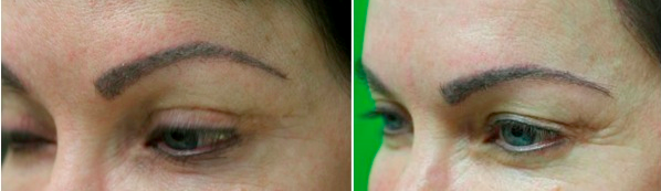 eyebrow transplant before and after