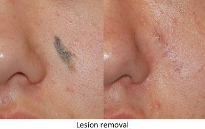 lesion removal skin cancer