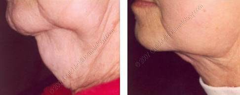 Lipodissolve before and after