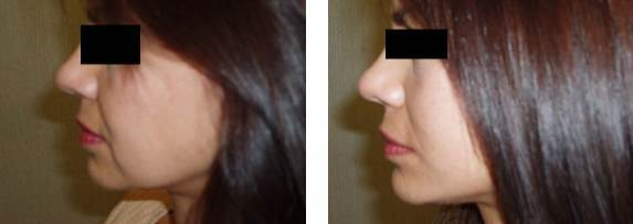 thread lift before and after