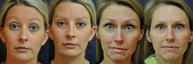 How Facial Botox Changes Your Brain ...