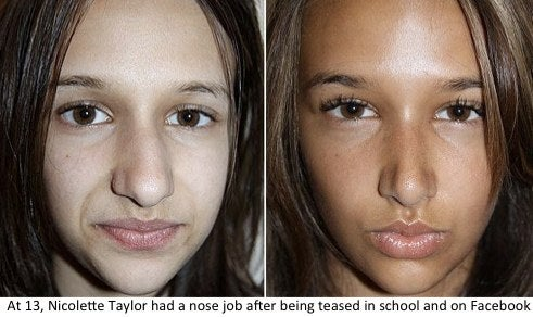 Teen before and after nose job