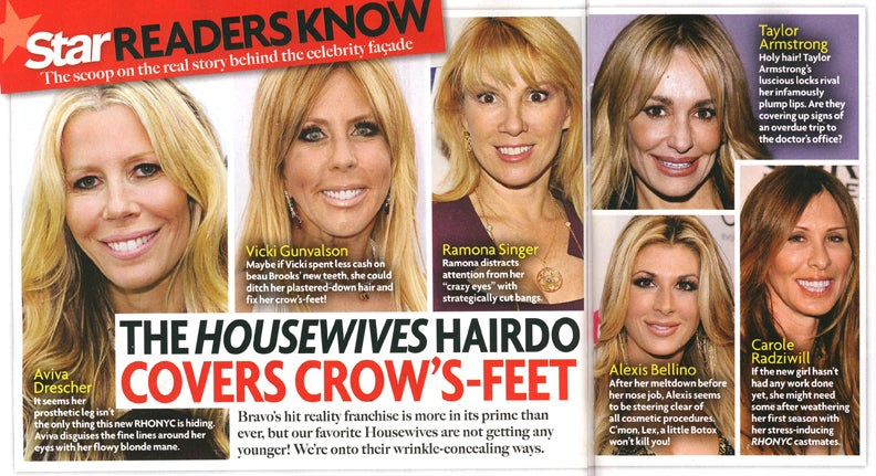Real Housewives crow's feet