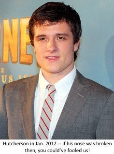 Josh Hutcherson nose surgery