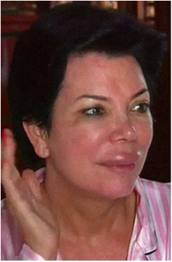 Kris Jenner lip filler