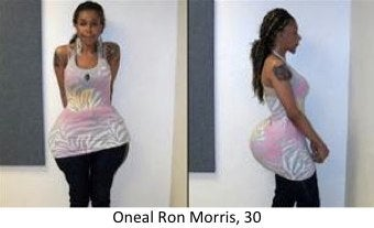 Oneal Morris cement and fix-a-flat butt injections