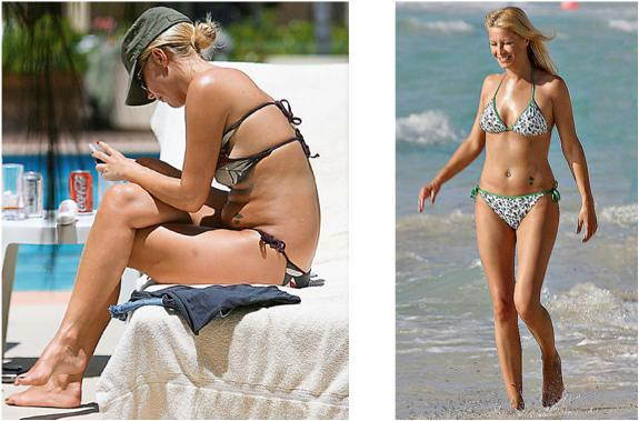 Denise Van Outen Before and After