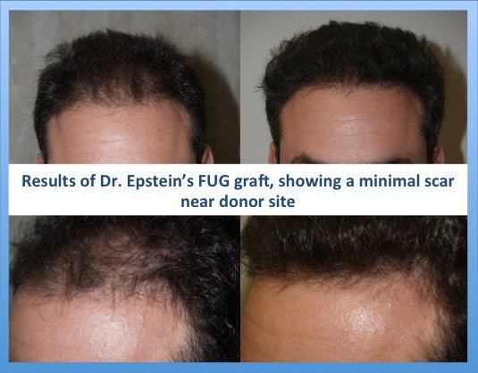 Before and after strip hair transplant
