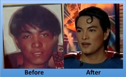 Herbert Chavez superman plastic surgery