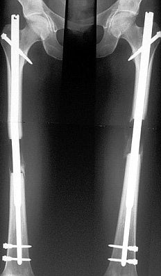 x ray with lengthening rod in place