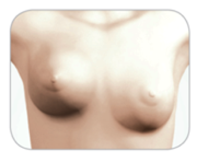 Capsular Contracture: Firm, painful, misshapen breasts