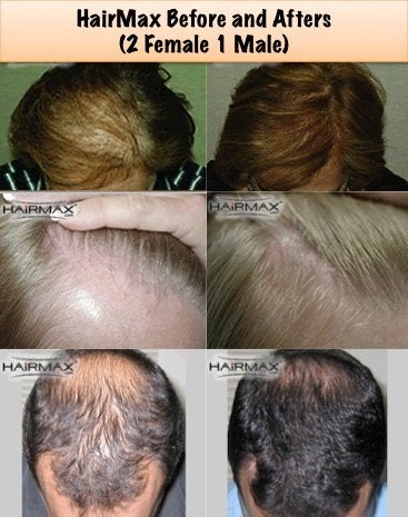 HairMax Laser comb before and after