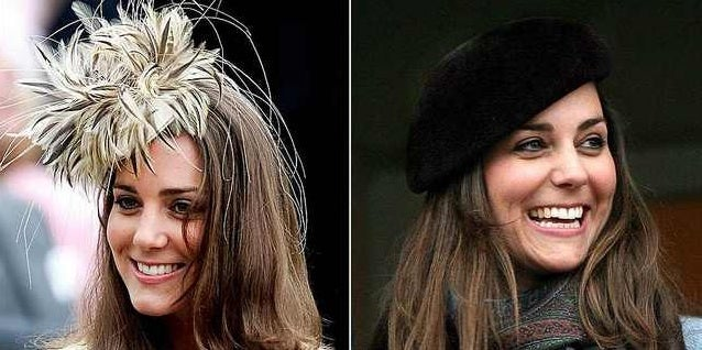 Kate Middleton teeth before and after